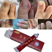 Nail Treatment Fungus Anti Fungal Cream Toe Foot Care Finger Repair Protector