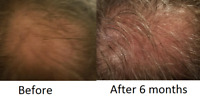 30% Hair Follicle Quantity Discount! Buy 4 get 1 Free! 5 bottles Will Ship!!!!