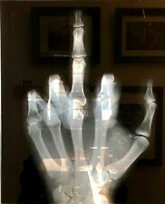 HUMAN HAND MIDDLE FINGER ORIGINAL X-RAY ART- PHOTOGRAPH PICTURE-UNIQUE-FAMILY