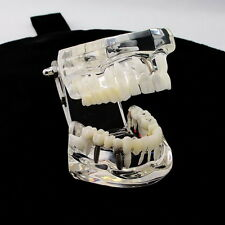 1PC Dental Implant Disease Teeth Model with Restoration & Bridge Tooth New XCV