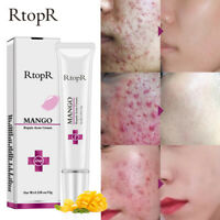 Anti Acne Cream Spots Scar Treatment Cream Shrink Pores Moisturizing Skin Care