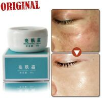 Lightening Whitening Bleaching Cream Remove Dark Skin Spots Face Treatment Care