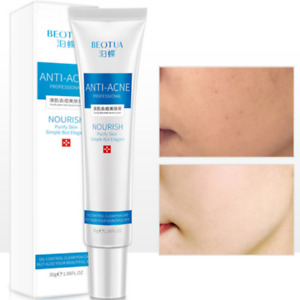 Blemish Cream Spots Removal Treatment Pimple Ointment Scar 30G Useful