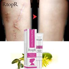 RtopR Acne Scar Stretch Mark Repair Cream Treatment Blackhead Whitening Cream g6
