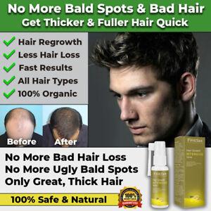 NEW FAST HAIR GROWTH OIL LOSS TREATMENT SPRAY NATURAL SAFE POWERFUL BEARD BODY