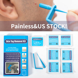Micro TagBand Skin Tag Remover Device Kit For Small To Medium Skin Tags Beauty