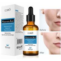HYALURONIC ACID SERUM 30ml-Collagen/Anti-Aging/Wrinkles/Hydration Aging Aging US