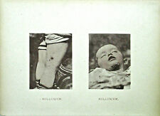 Hand Colored Collotypes From Photographic Illustrations of Skin Diseases (V)