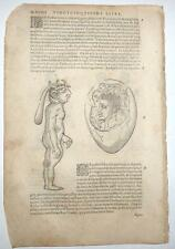 1585 - Four Illustrations of Conjoined Twins and Birth Defects - Ambroise Pare