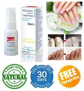 Extra Strong Fungal Treatment Lotion 30ml Kills 99.9% Skin Nail Fungus Tea Tree