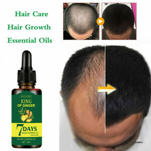 Ginger Fast Hair Growth Loss Serum Essential Oil Anti Preventing Hair Loose New