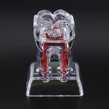 Plastic Teeth  Molar Model Crystal Base Separable Teaching Demonstration Dental