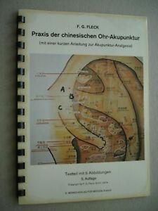 Ohr-Akupunktur Praxis Anleitung 5x Abb. Analgesie 1975 Asien China