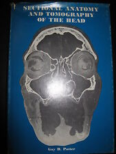 Sectional Anatomy And Tomography Of The Head, Guy D. Potter, M.D.