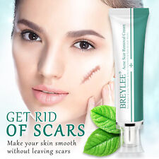 BREYLEE Acne Scar Stretch Marks Blemish Removal Skin Repair Cream Gel Treatment