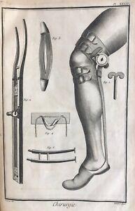 Encyclopédie DIDEROT et D'ALEMBERT Chirurgie PLANCHES sciences LUMIÈRES arts