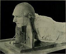 Antique Post Mortem Pathology Photo 126 Bizarre Odd Strange