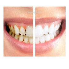 HOME TEETH WHITENING GELS 35 36% MINT FLAVOUR, TOOTH WHITENER BLEACH 0.01%