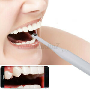 720P Oral Dental Intraoral Camera Endoscope HD LED Shoot Android USB Cable