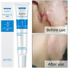 Face Skin Care Acne Scar Treatment Removal Cream Spots Blemish Marks Repair Tool