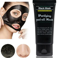 Blackhead Removal Face Mask Deep Cleansing  Mud Dirt Cleaner Acne Remover -
