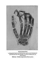 Encadrée Imprimer-radiographie Vintage ou une main momifié (photo ANATOMIE Medical Art)