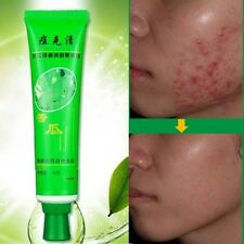 New Blemish Skin Cream Treatments Removal Face Stretch Acne Scar Effective