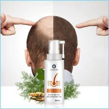 Hair Growth Spray Anti Hair Loss Serum For Fast Hair Growth  Natural Treatment