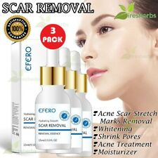 Face Serum Scar Stretch Marks Removal Whitening Acne Large Pores Treatment 45 ml