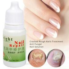 Fungal Nail Treatment Onychomycosis Paronychia Anti Infection Liquid Repair