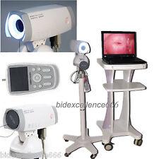 Digital High Image Sony 1,000,000 Camera Electronic Colposcope+Roller Tripod CE