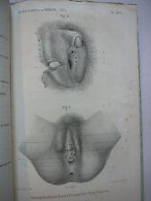 Etude d'un cas d.Hermaphrodisme Bisexuel imparfait chez L.Homme. 2 planches.1870