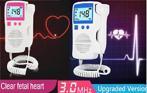 Fetus Herzfrequenzdetektor LAGER Frankreich Fortal Doppler OHNE Strahlung