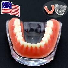 Dental Implant Model Inferior Teeth Precision Typodont Silver Bar USA
