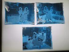 3 NEGATIVES OF MARY & MARGARET GIBB, 1949,CONJOINED/SIAMESE TWINS OF HOLYOKE, MA
