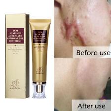 Acne Scar Removal Super Cream Blackhead Scar Remover Cream Pimple Pore Cleaner
