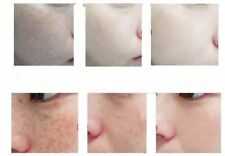 Bleaching Cream Freckles Removal Day&Night Cream Set Face Care Whitening Skin