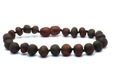 Unpolished Cherry Baltic Amber Bracelet/Anklet-Beads Knotted Adult sizes 18-25cm