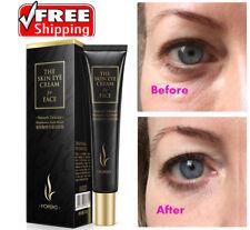 Gleiche Effekte der PLEXADERM schnelle Auge Anti Aging Falten Creme verbessern