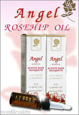 Rose hip oil / Aceite de Rosa Mosqueta - vitamin E -original made in CHILE x 1