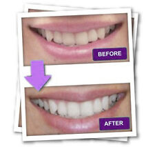 NEW Teeth Cleaning clean whiten fast remove the stubborn stains dental plaque