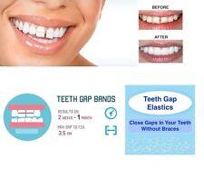 """IVORIE Dental Teeth Gap Orthodontic Bands Clear Elastic 100/Pk 5/16"""" X-Heavy"""
