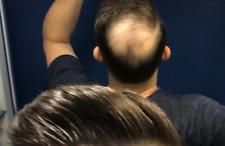 Toppik Noir 27.5g poudre Cheveux Densifiant Kératine 27,5 g 9 couleur