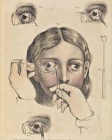 Vintage Medical Illustration Surgery Brain Anatomy Real Canvas Art Print