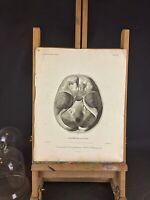 RARE Milieu XIXeme Ancienne gravure médicale chirurgicale «Crâne» d'après DEL