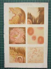 1890 impresión ~ Anatomía ~ enfermedades de la Skin Calva Manchas tiña eczema Ortiga