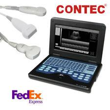 Portable Laptop Machine Digital Ultrasound Scanner Convexlinearcardiac Probes