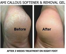 AMI Callous /Rough Skin Removal Gel 100mlx2 Instant Removal of Dry Skin (Unisex)