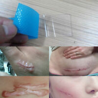 3.5*12cm Silicone Gel Scar Patch 1 Piece Dilute the scar YJWA