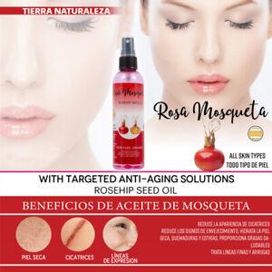 Aceite Rosa Mosqueta Regenerador E Hidratante 100% Natural
